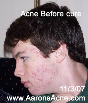 acne before acne cure, left side view